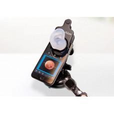 ОтоСим Мобайл — карманный симулятор отоскопии
