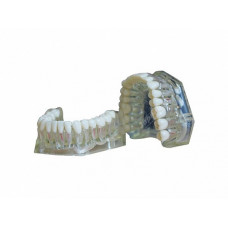 Денто-модель верхней и нижней челюстей для эндодонтии ЧВН-32Э